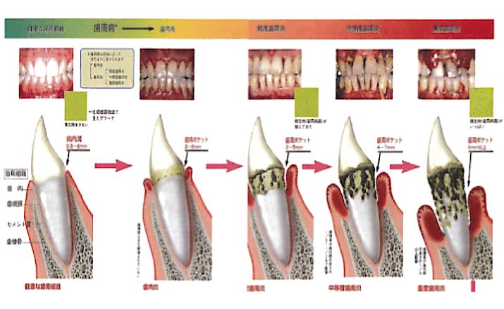 歯周病の段階